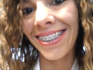 Videos porno de braces videos de braces
