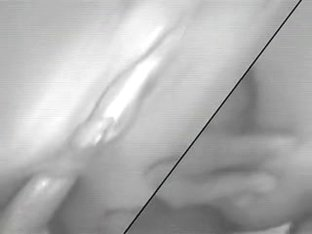 Dilettante anal creampie close up..RDL